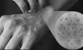 Аллергия на солярий симптомы