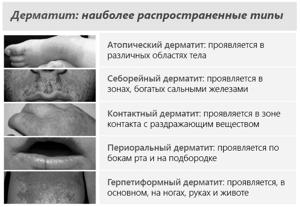 Кожный дерматит лечение мази