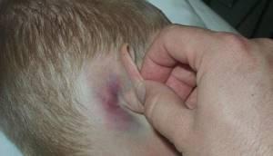 Аллергия на ушах у взрослого