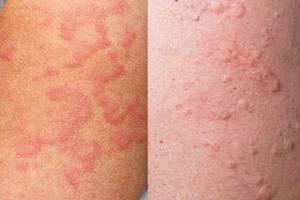 Как выглядит аллергия на коже
