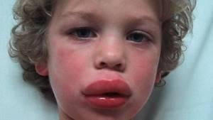 Анафилактический шок симптомы у детей