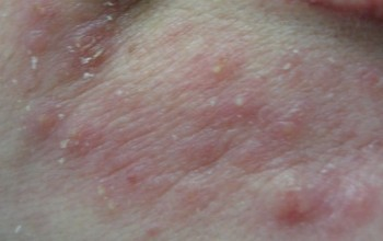 Аллергия вокруг рта у взрослого