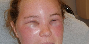Аллергическая реакция по типу отека квинке
