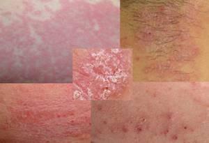 Аллергическая сыпь на теле у взрослого