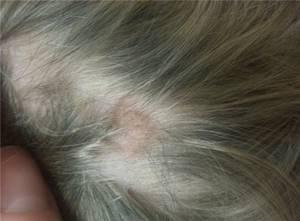 Йоркширский терьер аллергия