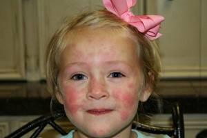 Грибковый дерматит лечение