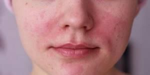 Аллергия на щеках