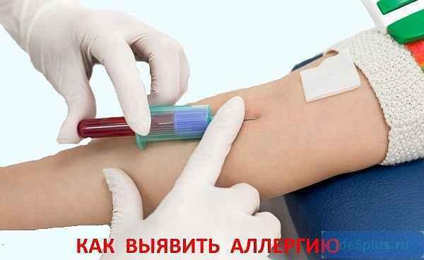 Диагностика аллергии