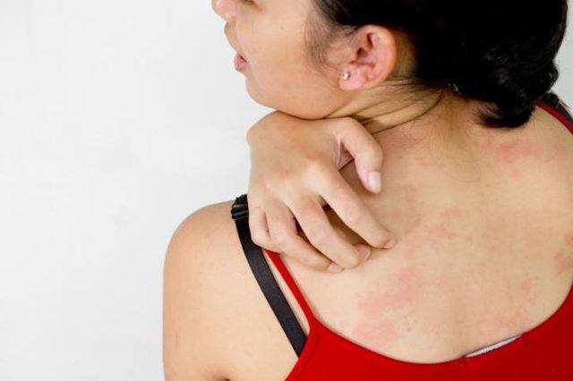 Красные точки на теле аллергия