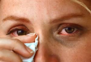 Аллергия на ментол