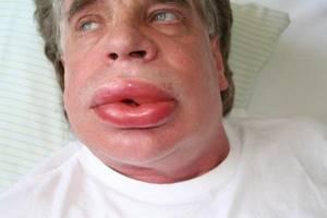 Аллергия на зиртек