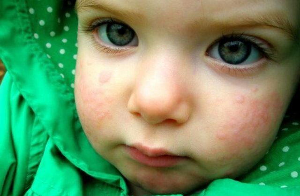 Аллергия на мороженое у ребенка