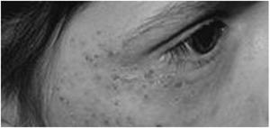 Аллергические высыпания на коже у взрослых