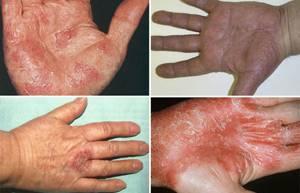 Экзема на пальцах рук лечение