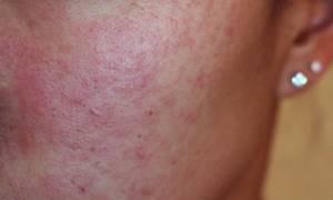 Аллергия на гель для душа