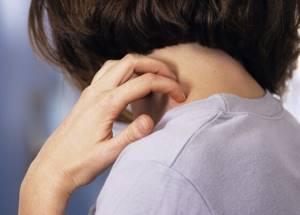 Аллергия на укусы блох
