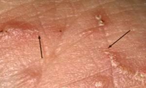 Сыпь на теле чем лечить