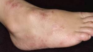 Контактный дерматит на ногах