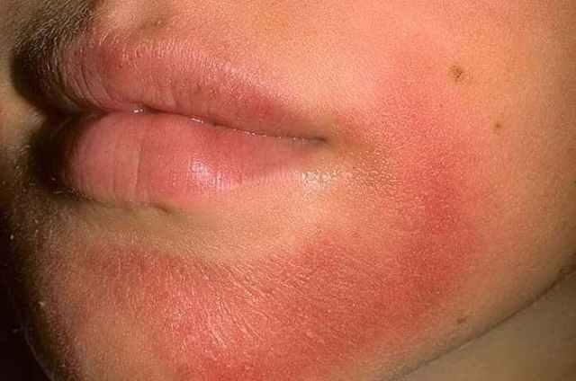Аллергия на крем для лица что делать