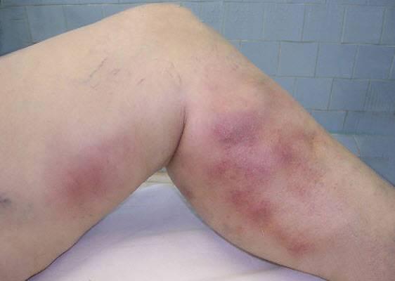 Сыпь на ногах