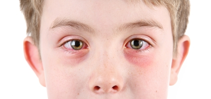 Недорогая мазь от аллергии на коже