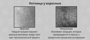 Сыпь от пота