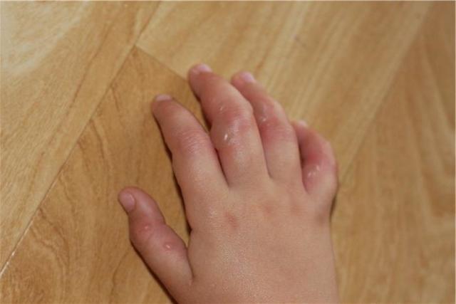 Высыпание на руках в виде пузырьков