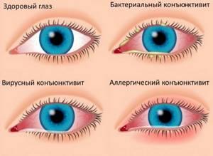 Капли глазные противоаллергические список