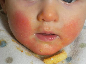 Как выглядит аллергия у младенца