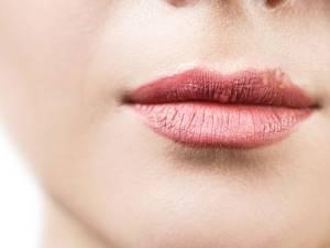 Мелкая сыпь на губах