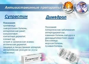 Антигистаминные препараты по поколениям