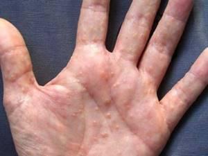 Дисгидроз на руках