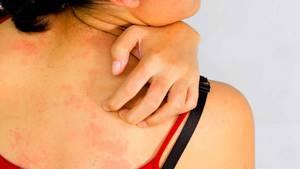 Пятна на теле аллергия