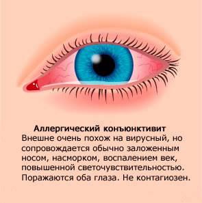 Капли в глаза от аллергии кромогексал