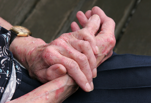 Как выглядит аллергия на руках