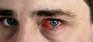 Глазные капли от аллергии детям