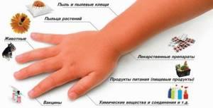 Аллергия на плесень у детей симптомы