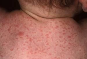 Аллергия на порошок как проявляется