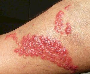 Аллергия на лейкопластырь