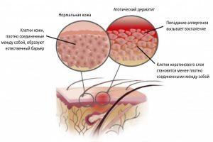 Мазь болтушка от аллергии