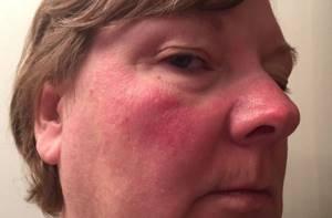 Аллергия на спиртное симптомы
