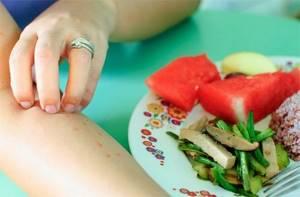 Аллергия на пищевые продукты