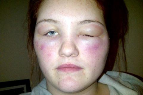 Аллергия на спирт