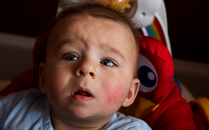 Аллергия у ребенка на щечках