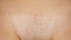 Аллергия половых губ