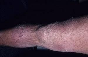 Чем лечить дерматит на ногах