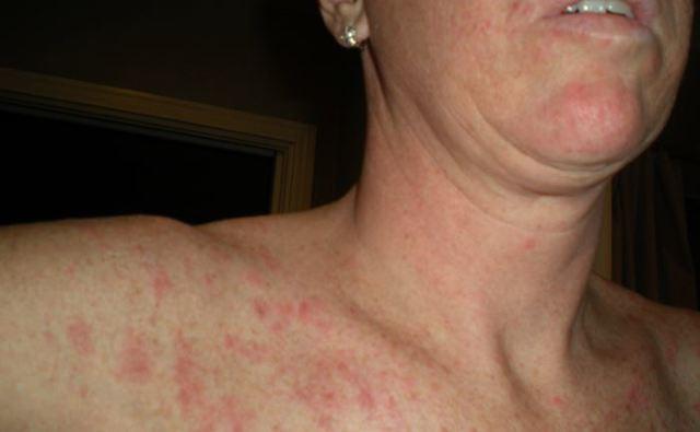 Аллергия на коровий белок