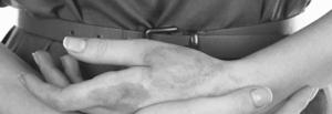 Хронический дерматит