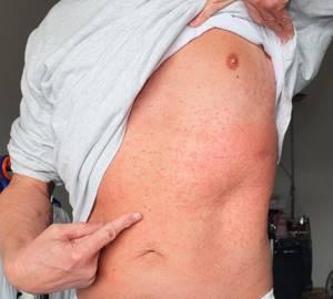 Аллергия на хлопок