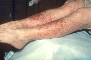 Аллергический васкулит симптомы